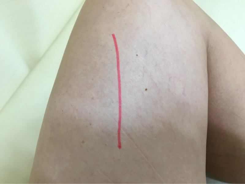 手術後に痛みが取れない時の処置の方法とは?